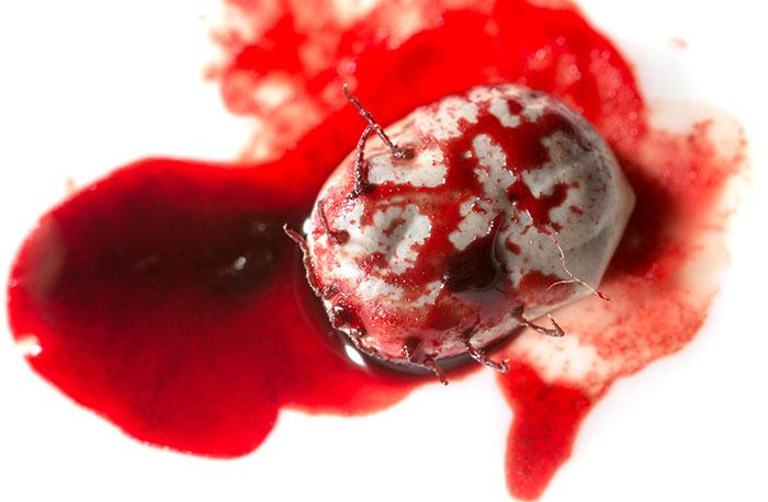 Wenn der Zeckenbiss blutet