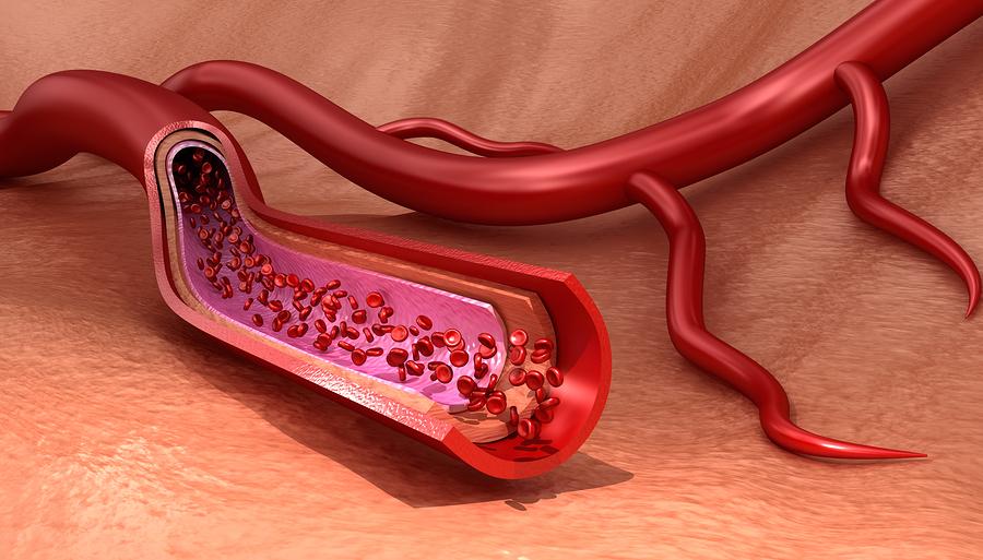 Ursachen von Boutonneuse-Fieber